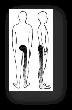 sciatica-mckenzie